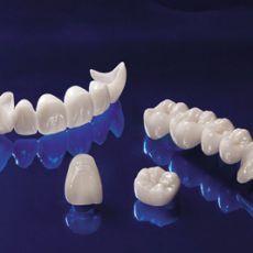 Phục hình - răng sứ